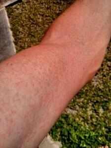 Сыпь на руке у страдающего лихорадкой Зика больного.